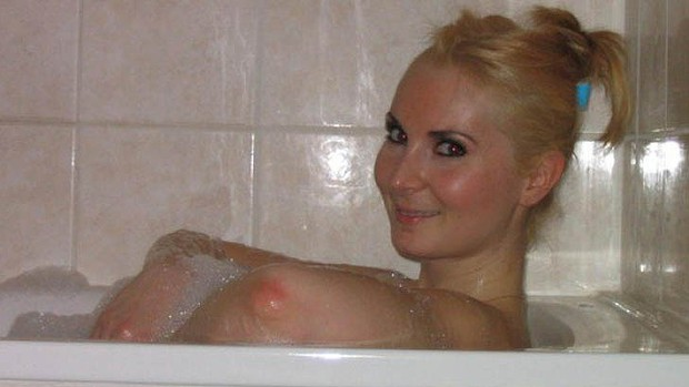 Click image for larger version.  Name:elbow_breast.jpg Views:334 Size:40.2 KB ID:847